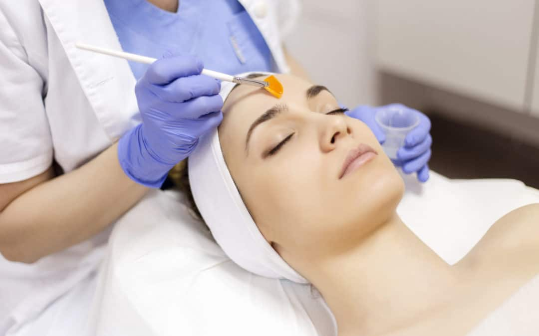 Why you should be getting chemical peels in Winter